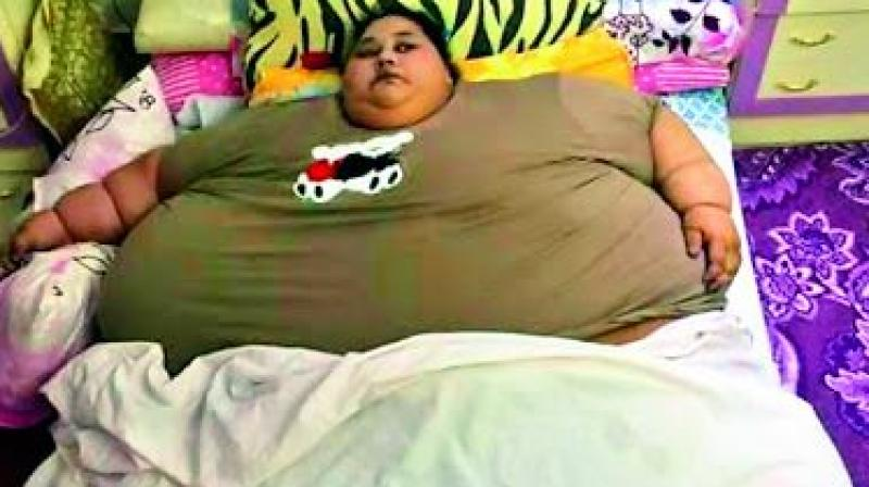 India has high hopes on 500-kg womans surgery